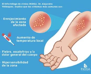 imagenes de una celulitis infecciosa